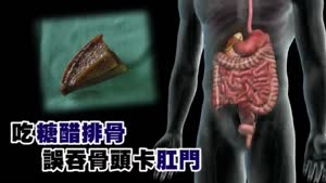 Man gets spare rib stuck in anus