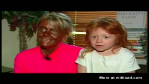 Insane Mother Tanning 6yo Daughter