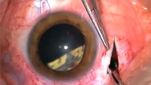 Removing Glass From Eye