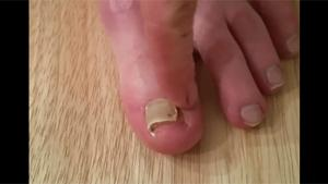 Ripping Off Rotten Toe Nail