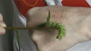 Venomous Caterpillar Bite