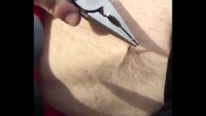 Removing Huge Splinter